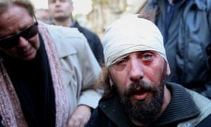 Greek photographer Kostis Ntantamis suffers from head injuries in Athens