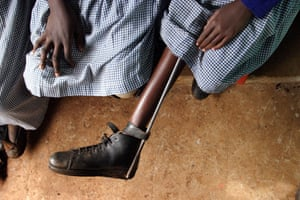 In 1996, 75,000 children in Africa were paralysed by polio; campaigners say the fight is now to improve life for survivors.
