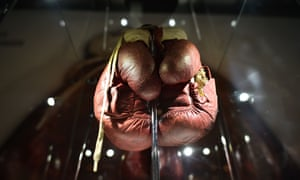 A pair of split boxing gloves worn by Muhammad Ali during his 1963 fight against Henry Cooper are displayed at the Muhammad Ali exhibition entitled 'I Am The Greatest', at the O2 Arena in London.
