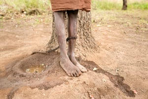 Umama Belakoba does not know her age. She has schizophrenia and is cared for by her mother at Nyinbunya prayer camp and Pentecostal Church in northern Ghana, where she has been chained for a year to a shea tree. She has four children.