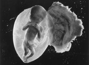 Prenatal journey … Foetus 18 weeks, by Lennart Nilsson.