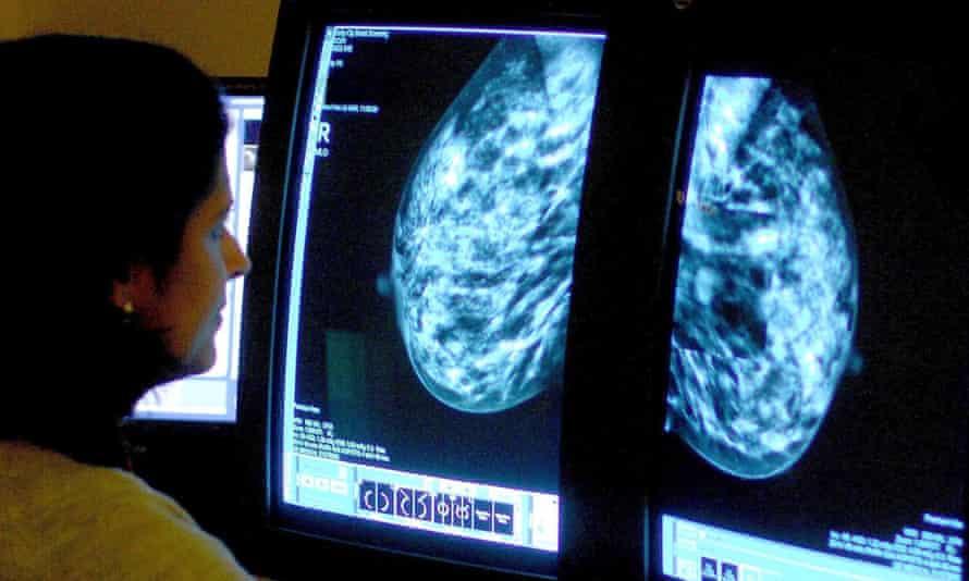 Radiologist examines a mammogram scan