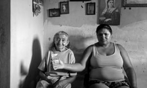 A mother with her daughter, who is affected by Zika symptoms.