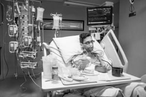 Nick recovers in the intensive care unit two days after liver transplant surgery. This is Nick's first meal since the operation.