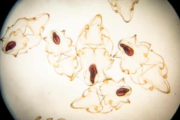 A microscope image of sunflower sea star larvae, born in mid-January. The dark oval shapes are stomachs.
