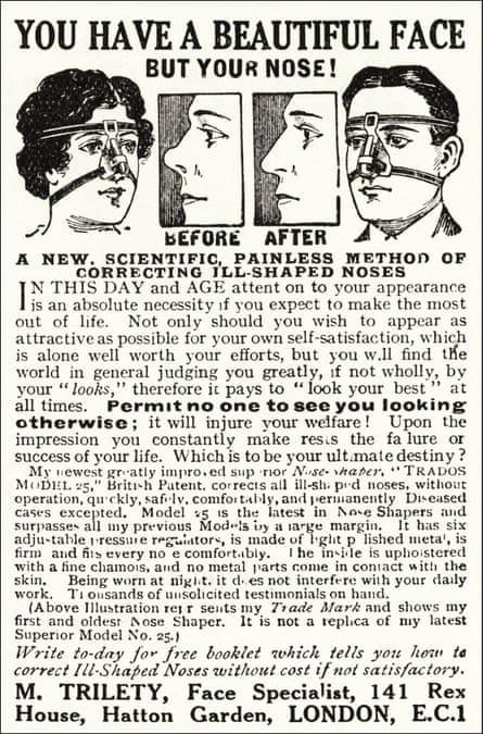 Advertisement for a nose-shaping device, 1923.