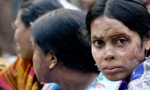 Acid attack victims in Dhaka, pictured in 2005