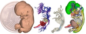 3D reconstructions of a human embryo at 9.5 pregnancy weeks (15.9 mm in length). From left to right the skin, cardiovascular system, skeleton and organs.