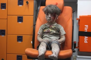 Aleppo, SyriaFive-year-old Omran Daqneesh sits alone in the back of an ambulance after he was injured during an airstrike