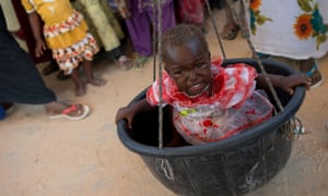 Stunting affects tens of millions of children worldwide