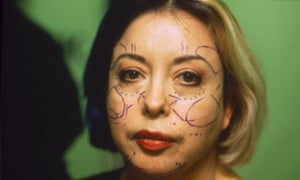 ORLAN before the cosmetic surgery operation she broadcast to galleries worldwide.