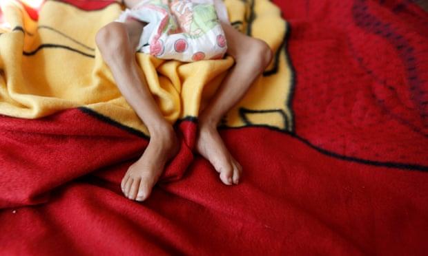 theguardian.com - Lucy Lamble - British risk complicity in Yemen 'famine crime', says Alex de Waal