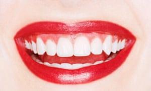 photograph of teeth