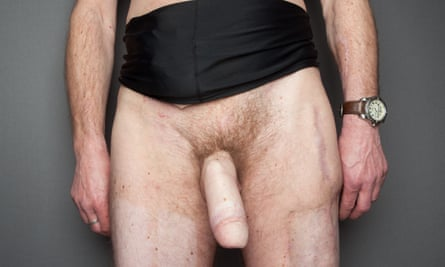 penis and testicles, belly, hands and thighs