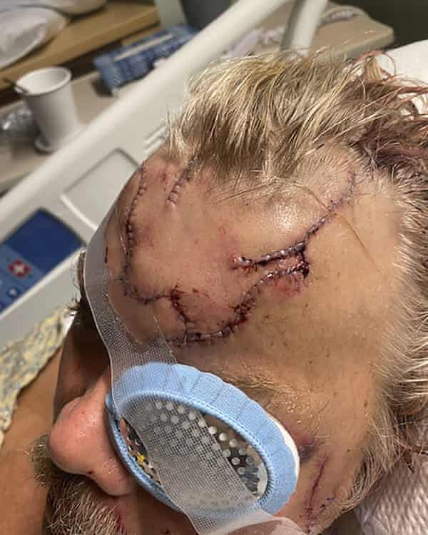 Allen Minish shows lacerations on his head as he recuperates at a hospital in Anchorage, Alaska, following a mauling by a brown bear.