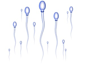Sperm cells on their way to the egg.