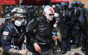 Paris, France. Medics help a man injured during May Day demonstrations. More than 7,400 officers will be deployed across Paris with orders from the president to take an extremely firm stance against violence