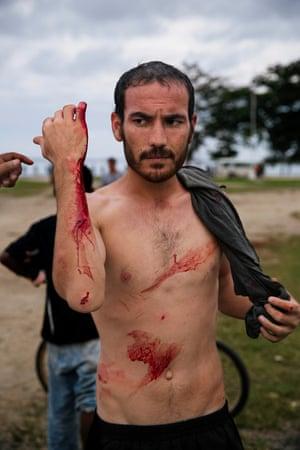 Manus refugee after attack
