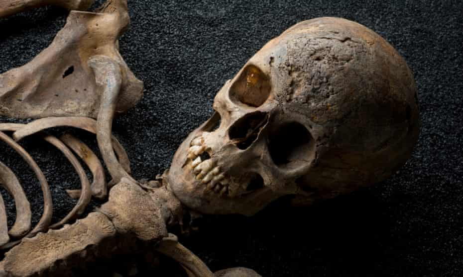 This skeleton from medieval London shows evidence of syphilis, a resolutely urban disease.