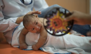 A three-month-old baby, Daniel, who was born with microcephaly, undergoes physical therapy in Recife, Brazil.