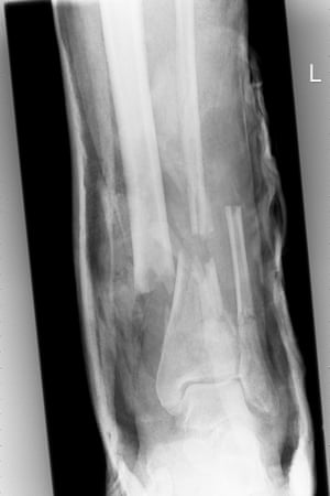 The initial x-ray of Ed Vulliamy's leg on arrival at hospital