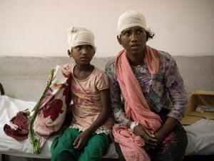 Rohingya refugees Dilder Vezum, 30, and daughter Noor-Karima Vezum, 10, from Tula Tuli in Myanmar, sit on a hospital bed