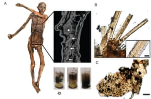 A: Ötzi and the contents of his stomach. B: Meat fibres from his stomach. C: Plant remains.