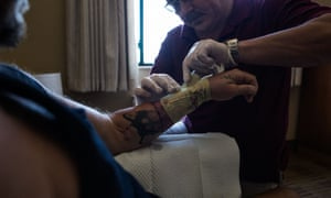 Ruslan Nachoy, an RN, changes Cid Isbell dressing on his arm in a hotel room.