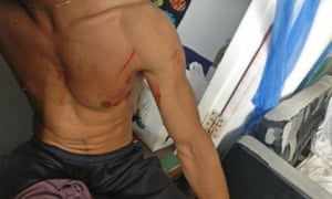 There were reported but unverified injuries sustained after the forced removal of asylum seekers on Manus Island