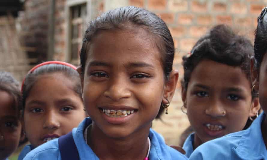 Indian schoolgirl with dental fluorosis