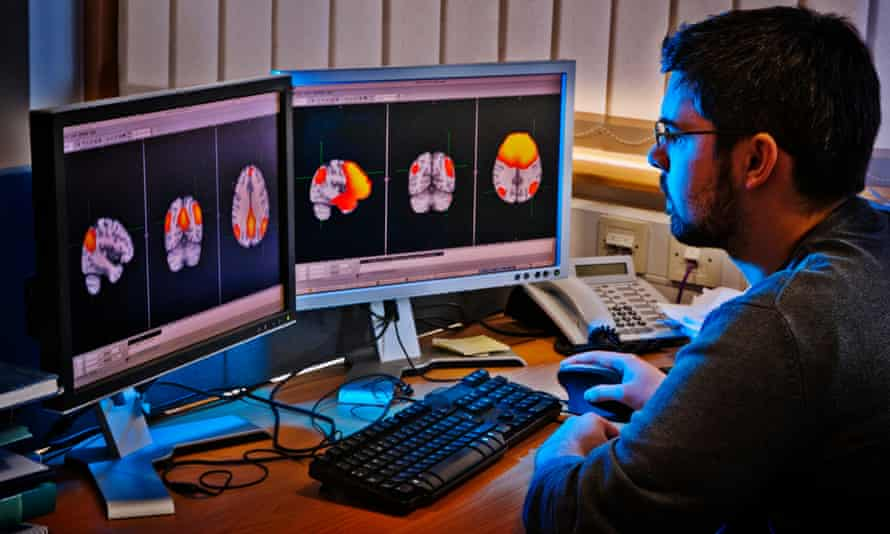 MRI and MEG scans show the networks of activity in the brain.