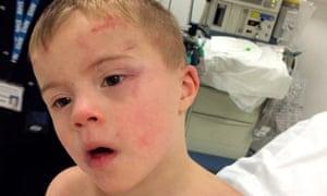 Riley Gedge-Duffy in hospital