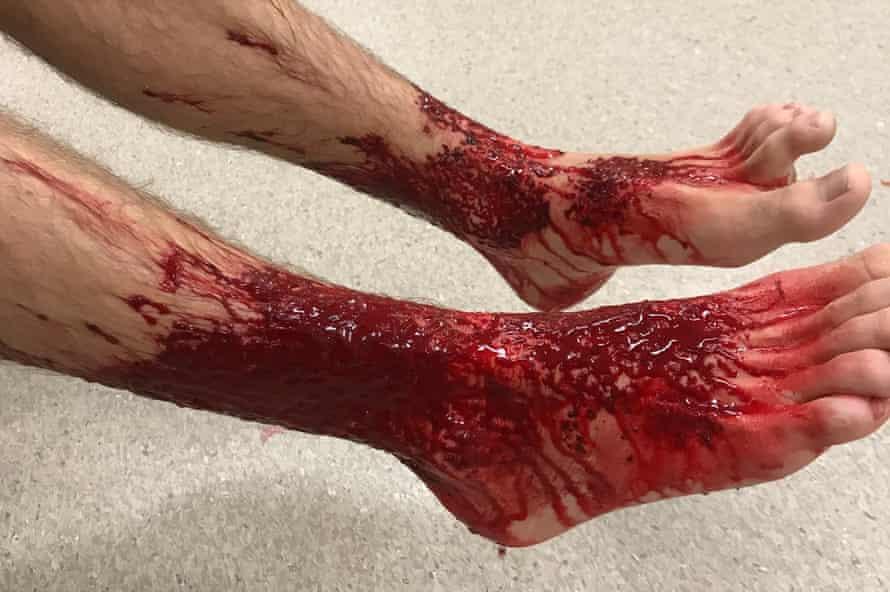 Sam Kanizay's legs after sustaining bites from the lysianassid amphipod.