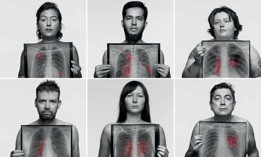 The campaign features portraits by the photographer Rankin of nine non-smokers diagnosed with lung cancer