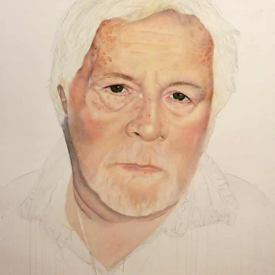 Bill Oddie in one of Andrea Tyrimos Bipolar Picasso portraits