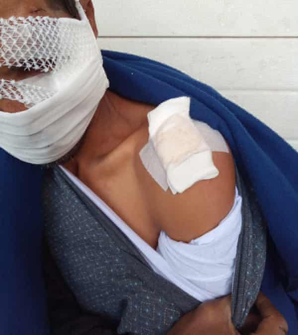 An asylum seeker shows their wounds after allegedly being beaten by Croatian border police.