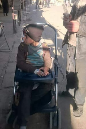 A boy being pushed in a buggy in Madaya. Activists say many people in town are too weak to walk.
