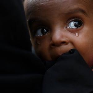 A malnourished Rohingya child
