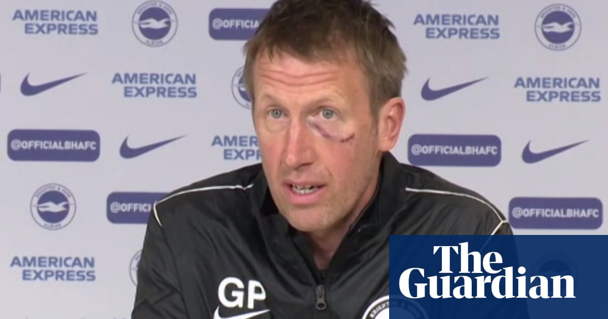 Brighton's Graham Potter suffers facial injury after falling into railing on beach