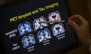 PET scan results that are part of a study on Alzheimer's disease at a hospital in Washington.