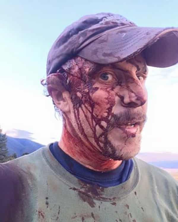 Todd Orr posted photos of his injuries to Facebook after being attacked by a grizzly bear in Montana.