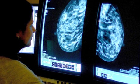Test for breast cancer risk could reduce pre-emptive mastectomies