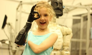 Tilly Lockey and her bionic hand