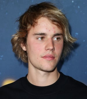& # 39; Pimples are in & # 39 ;: Justin Bieber.