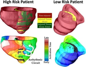 """This shows risk prediction for two patients with previous cardiac injury, one classified as high risk, and the other as low risk. In the high risk heart, arrhythmia developed, indicated by the electrical wave that was """"stuck"""" rotating around the injury. In the low risk heart, despite the presence of injury, no arrhythmia occurred."""