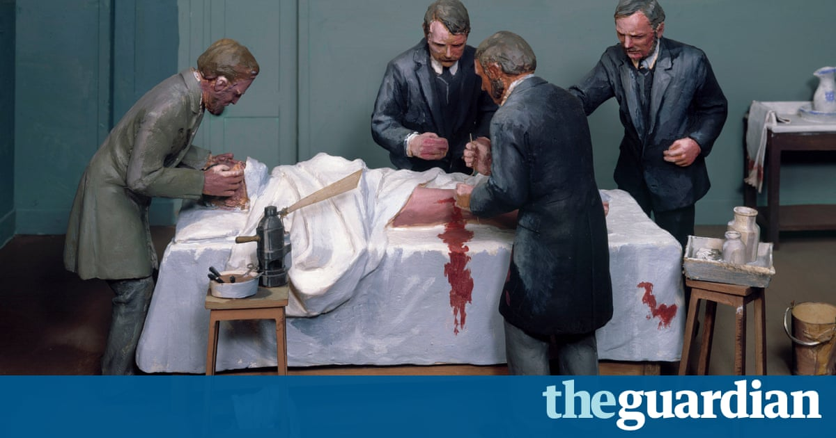 The Butchering Art by Lindsey Fitzharris review – grisly medicine