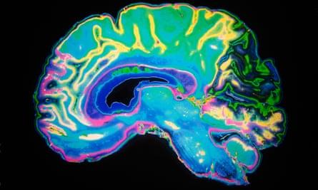 An MRI scan of the brain.