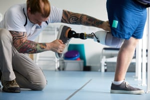 Kane having a new prosthetic leg fitted at Pace Rehabilitation in Stockport.