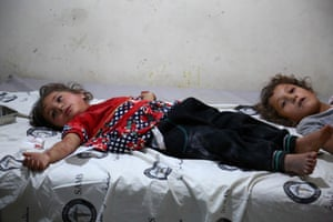 Two Syrian girls lie in a makeshift clinic after they were wounded during bombardments in the area of Tallmannis in Syria's northern Idlib province.