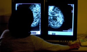A breast cancer consultant studies a mammogram.